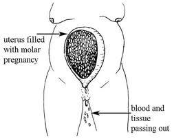 moalr pregnancy 2