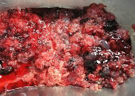 molar pregnancy 5