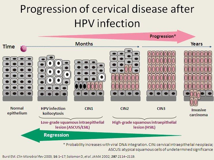 hpv virus cin 1